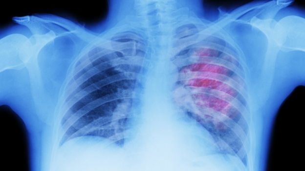 Lung cancer on an X-ray