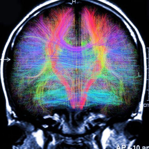 Escán que muestra fibras neuronales en el cerebro
