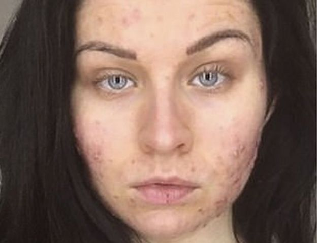 adult woman in Acne