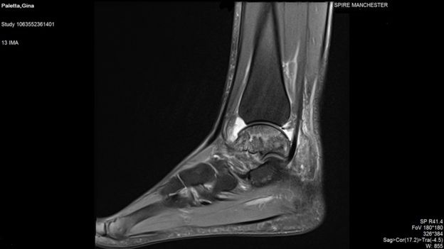 An MRI of Gina's ankle in 2016 - healthy bone would show up white