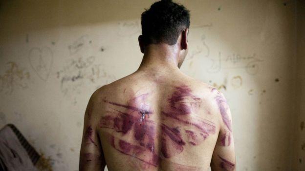 شخص يعرض آثار تعذيب