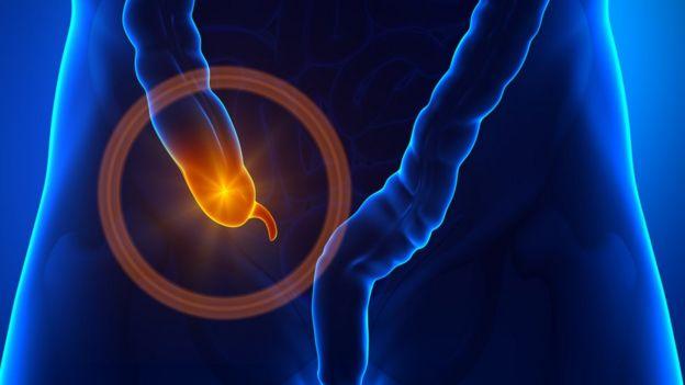 Ilustração de apêndice inflamado