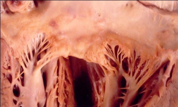 Válvula mitral com lesões macroscópicas