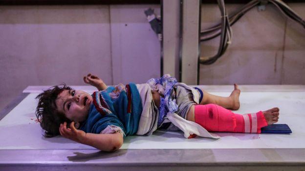 Criança ferida é atendida depois de um bombardeio em Doumba, perto de Ghouta Oriental