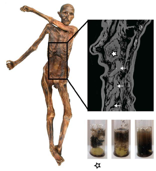 Detalhe do trato digestivo de homem primitivo