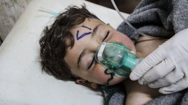 طفل سوري يتلقى العلاج بعد هجوم بالسلاح الكيمياوي المزعوم عام 2017 في خان شيخون، شمالي غرب سوريا