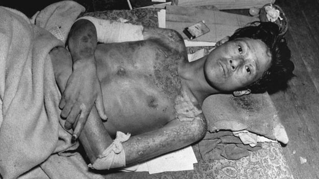 Sobreviviente de Nagasaki en 1945,