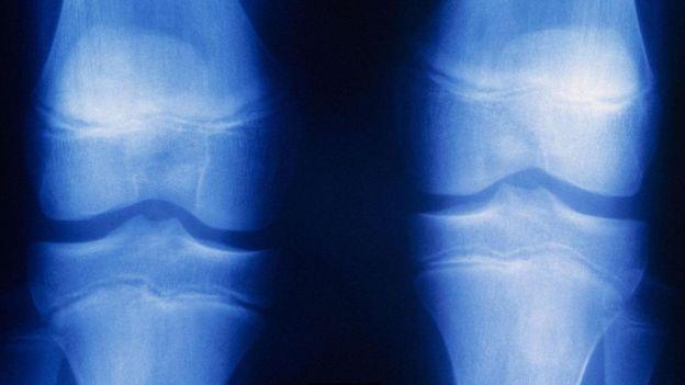 eklem röntgeni