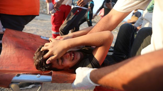 Un niño palestino herido