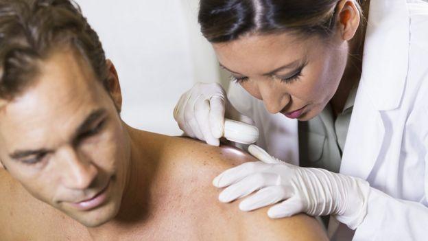 Женщина-врач рассматривает родинку на спине мужчины