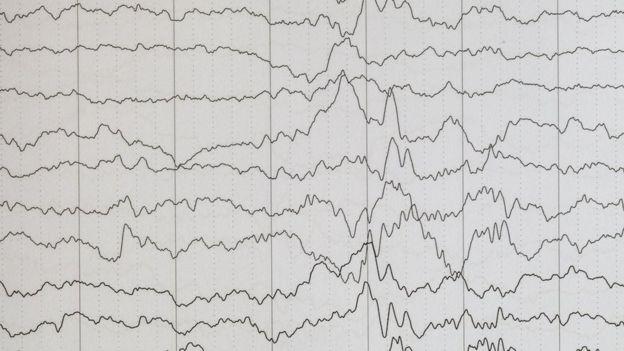 Encefalograma epilepsia.