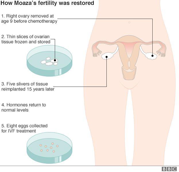 How Moaza's fertility was restored