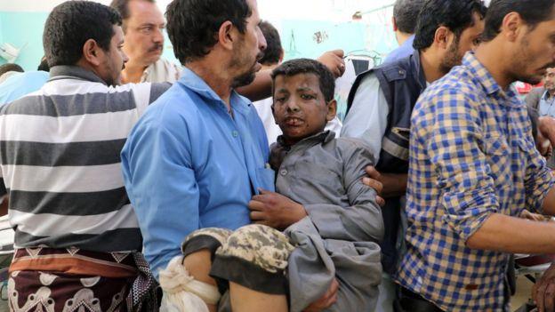 رجل يحمل طفل مصاب في الهجوم
