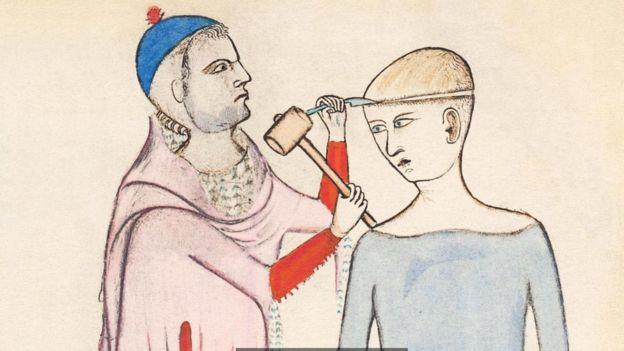 Una pintura sobre una trepanacin que data del siglo XIV autora de Guido da Vigevano