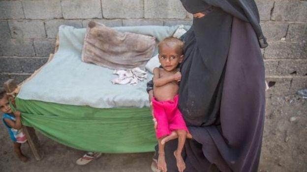 Niño y madre en Yemen