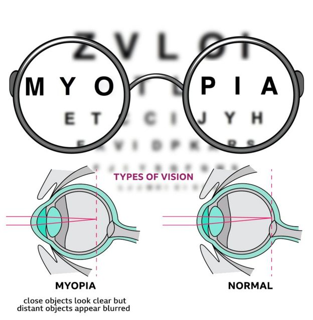 Image result for myopia pinterest