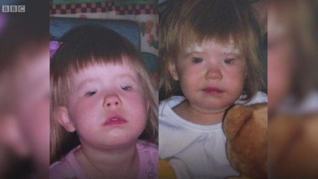 Holly Chidgey antes y después de sus operaciones