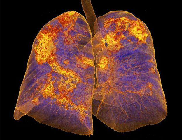कोरोनाभाइरसले फोक्सोमा सङ्क्रमण गर्छ