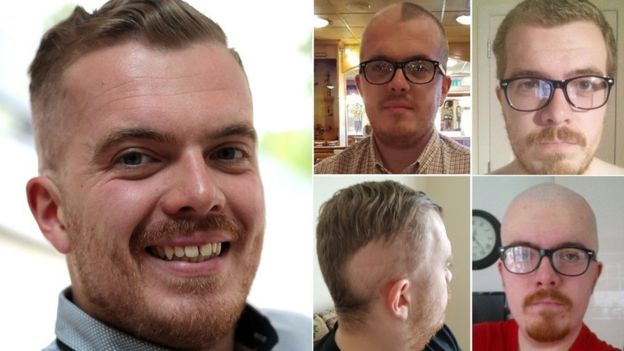 Cancer treatment: 'Men should talk about hair loss' - BBC News