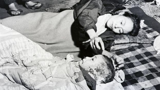 Madre reconfortando a su niño quemado por la bomba de Hiroshima