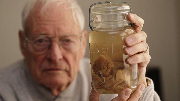 El patólogo Thomas Harvey con el cerebro de Einstein en un frasco