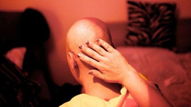 ผู้หญิงหลายพันคนอ้างว่าเป็นมะเร็งเพราะใช้ผลิตภัณฑ์ของจอห์นสัน แอนด์ จอห์นสัน บริเวณอวัยวะเพศ