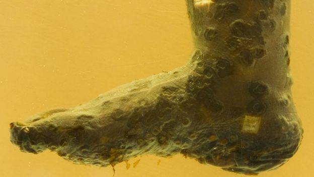 Un pie preservado de una persona que murió a causa de la viruela.