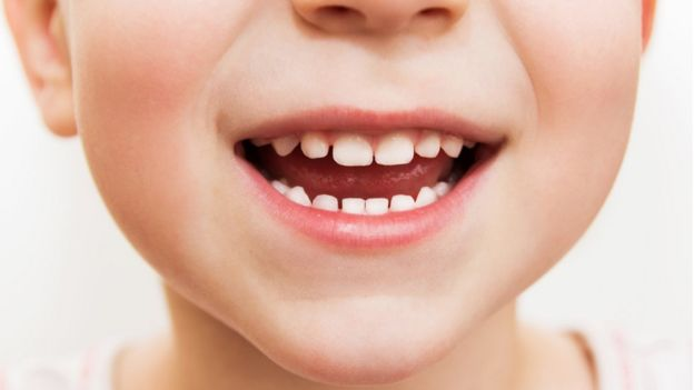 Child's teeth