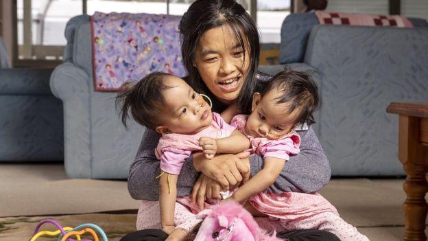 Bhumchu Zangmo holds her conjoined twins Nima and Dawa in Australia