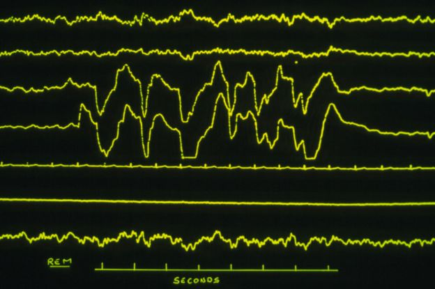 EEG showing patient in REM sleep