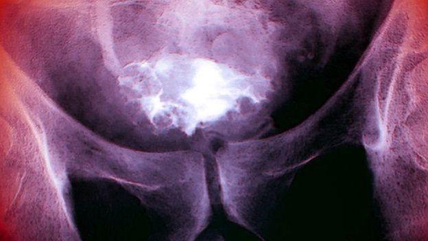 Ренгтенівський знімок пацієнта