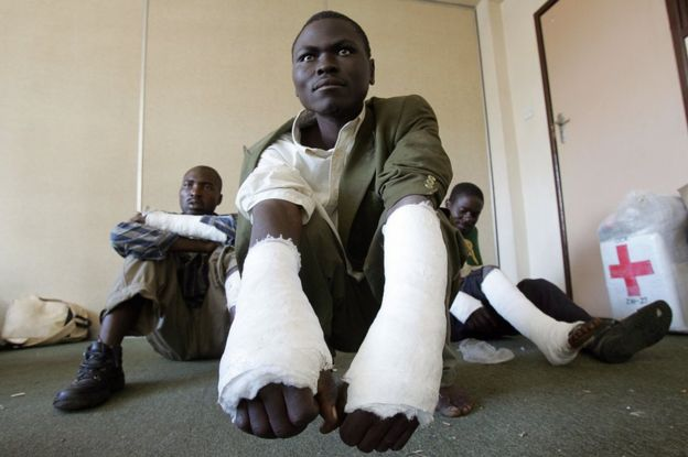 Three members of the Movement for Democratic Change (MDC) who say they have been beaten by members of Mugabe's youth with sticks in the Masvingo 300km south of Harare pose on May 3, 2008 in Harare.