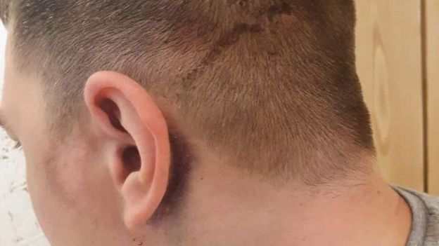 solopov's head