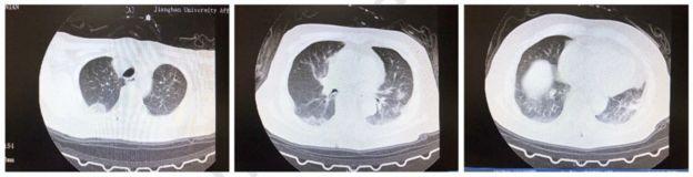 Radiografía de un pulmón