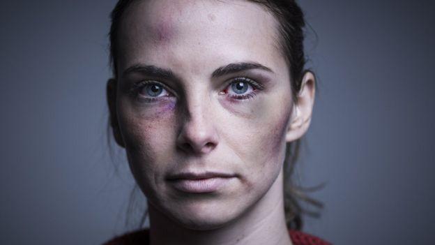 mujer joven golpeada