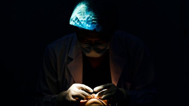 Hombre operando a un paciente