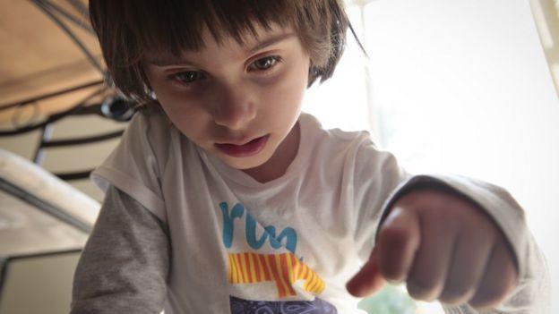 Niña con síndrome de Angelman.