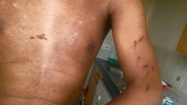 أحمد يقول إنه عذب خلال احتجازه