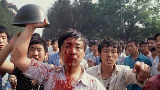 Một sinh viên bị thương trong cuộc đụng độ giữ lực lượng Quân đội Nhân dân Trung Hoa và người biểu tình vào tháng 6, 1989