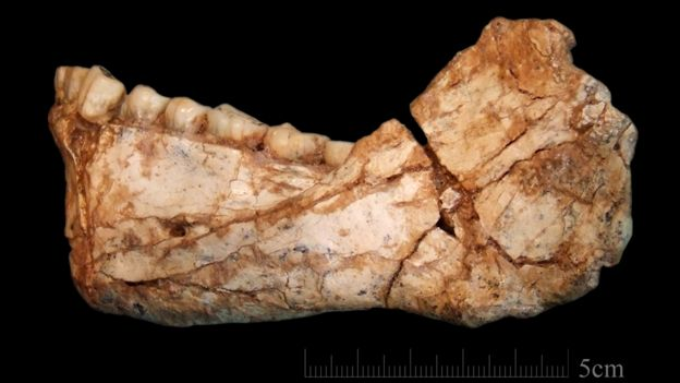 Lower jaw