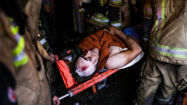 An injured person carried on stretchers after a blast at Tehran's clinic. Photo: 30 June 2020