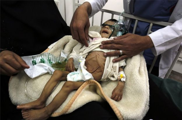 A picture made available on 19 January 2017 shows a Yemeni child, suffering from malnutrition, being treated at a hospital in Sanaa, Yemen