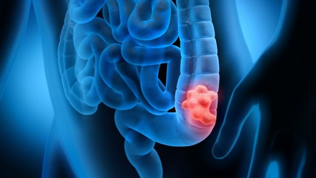 结肠癌示意图
