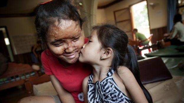Acid attacks: Cambodia victims 'denied government aid' - BBC News