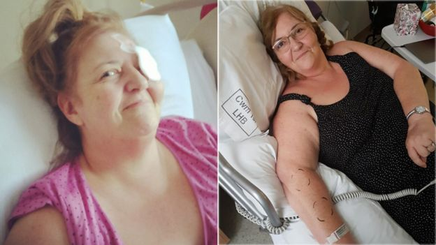 Nikki in the early days in hospital - and in rehabilitation