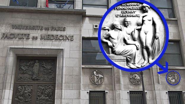 En la facultad de Medicina de la Universidad de París Descartes está inmortalizado en piedra el momento en el que Agnódice se desnuda en el Aerópago.