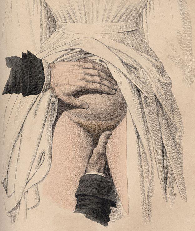 Desenho de Jacques-Pierre Maygrier, de 1840, que mostra um médico usando as mãos para fazer um parto