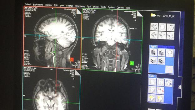 Imágenes de escáneres cerebrales