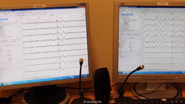 monitor de electroencefalografía,