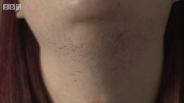 Detalle del cuello de Kim